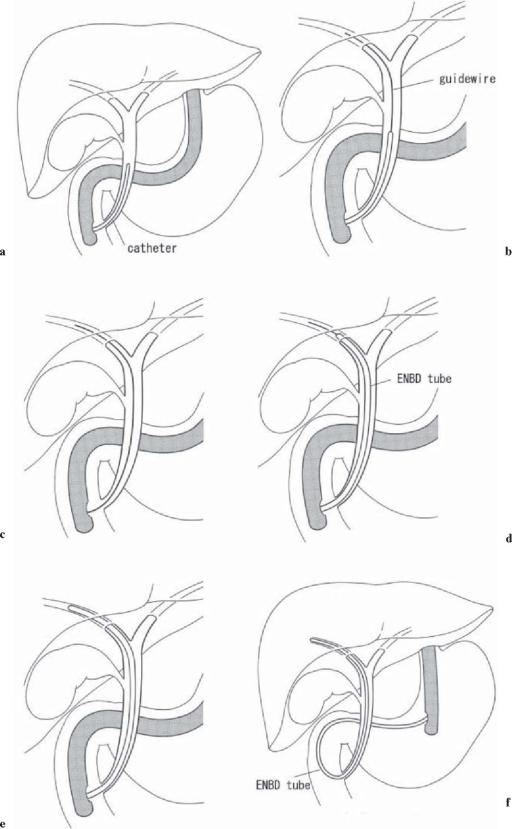 View Endoscopy Procedure: Techniques Of Biliary Drainage For Acute Cholangitis